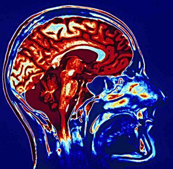 МРТ головного мозга при диагностике эпилепсии и при поражении черепно-мозговых нервов