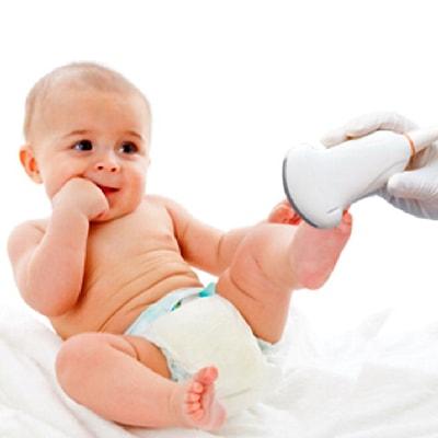УЗИ тазобедренных суставов детям до года за 700 рублей